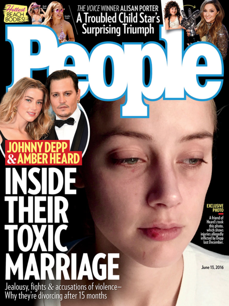 people cover 061315-amber heard with injuries